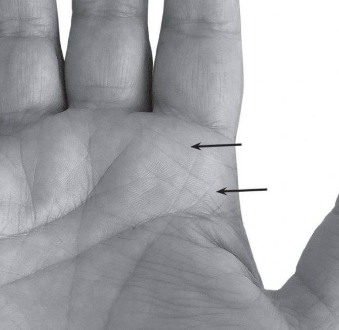 Родимые пятна на пальцах и ладонях - причины и трактовка от хиромантов